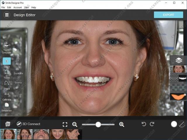 Smile Designer Pro Crack Download